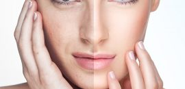 Home Remedies to Remove Uneven Patches of Skin Darkening