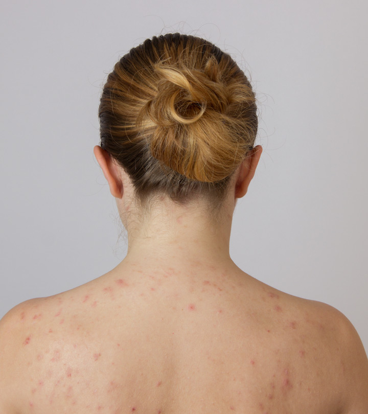 Adult Acne On Back
