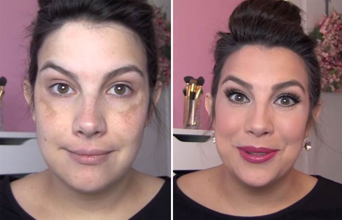 How To Hide Pimples With Makeup - How To Hide Melasma With Makeup