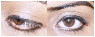 Prevent your Liner