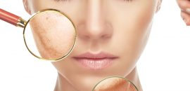 5 Natural Facial Packs To Fight Wrinkles!