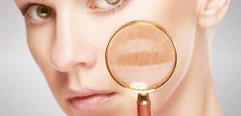 17 Tips To Remove Skin Pigmentation