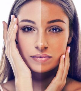 7 Simple Homemade Face Packs For Tanned Skin