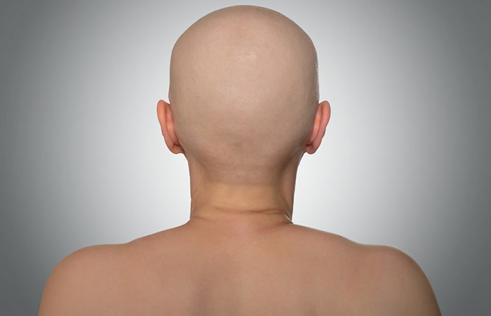 What Are The Different Types Of Alopecia