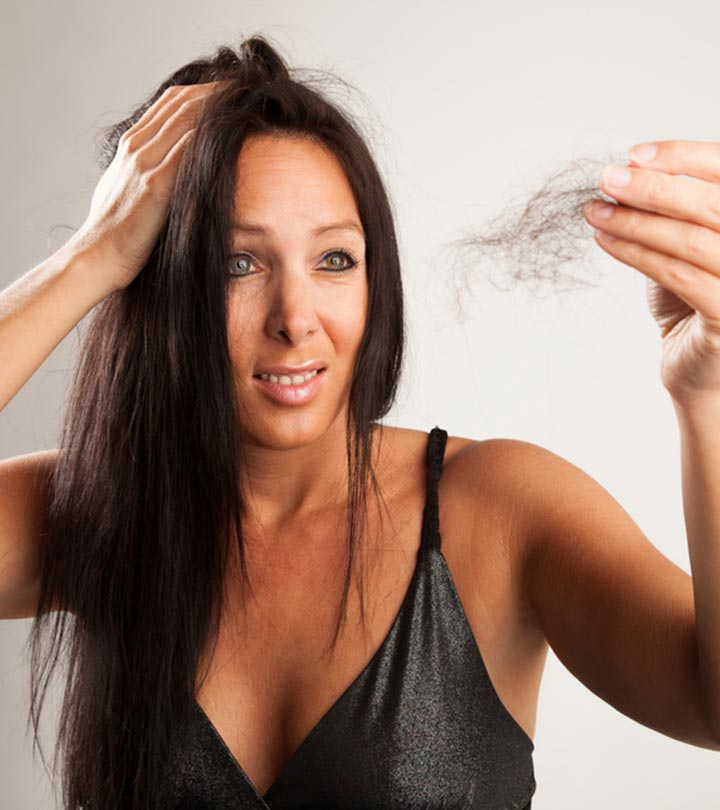 What Is Alopecia And How To Treat It Naturally