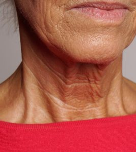 How to Prevent Neck Wrinkles?
