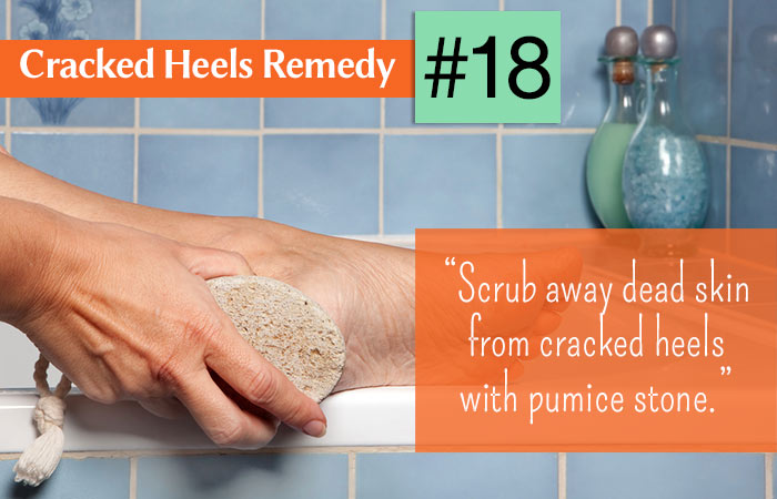 18.-Pumice-Stone-For-Cracked-Heels