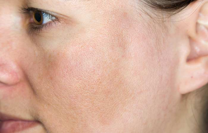 Benefits Of Parsley - Prevents Dark Spots And Skin Discoloration