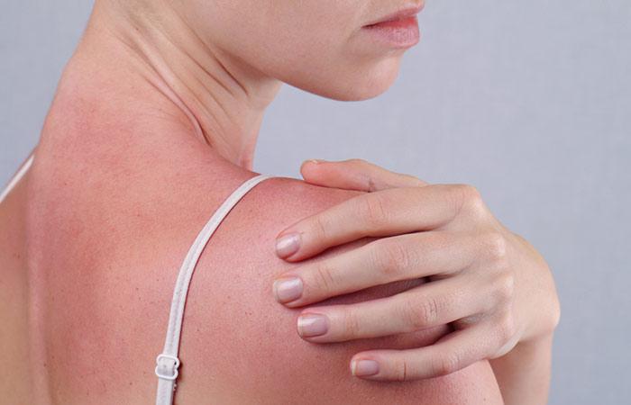 Benefits Of Coconut Milk - Treats Sunburns