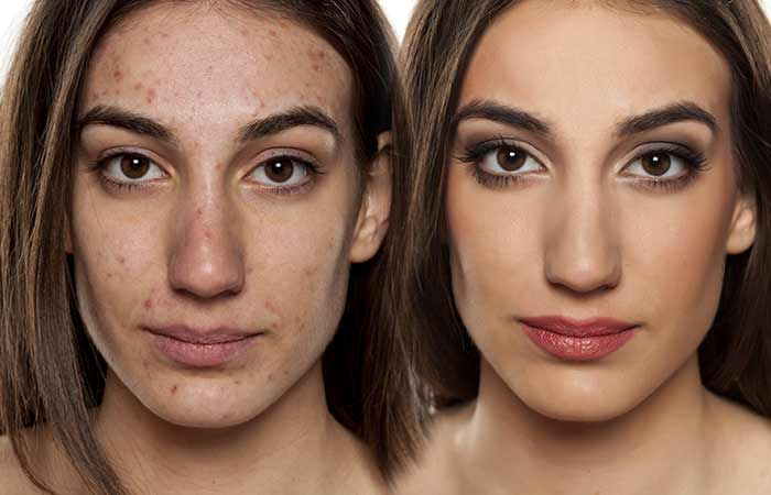 How-To-Get-Rid-Of-Pimples2