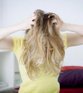 Top 5 Symptoms Of Dandruff