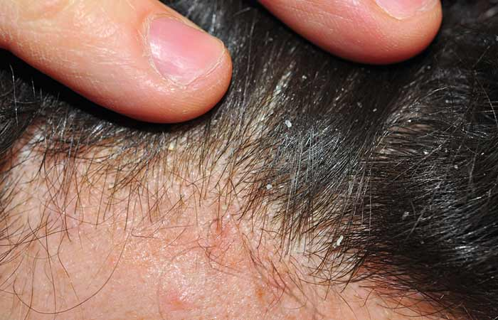 1. Dry Skin-Related Dandruff