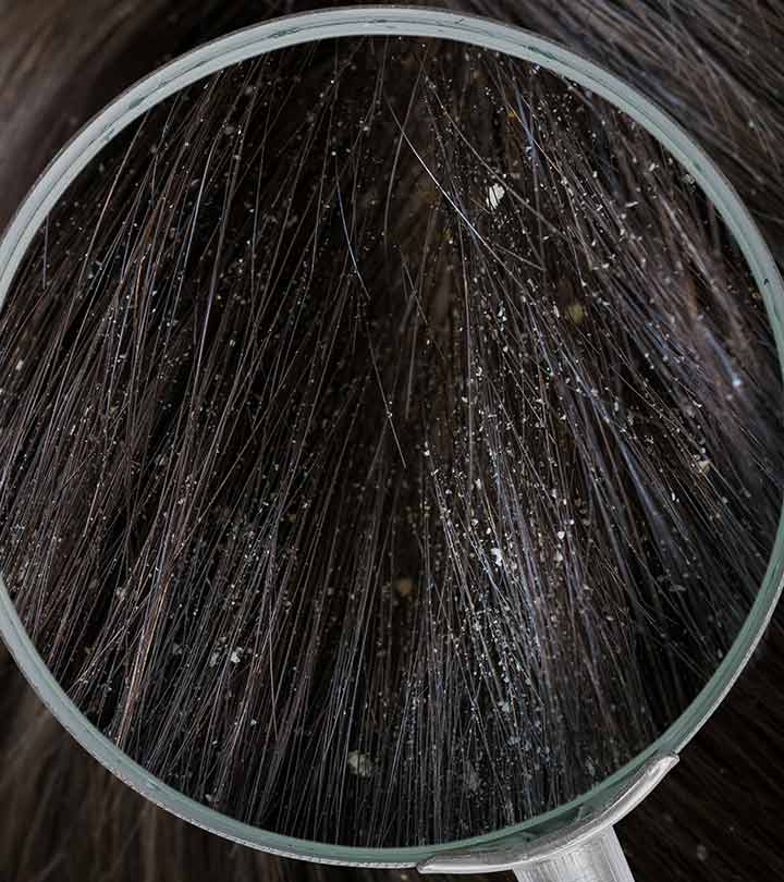 What Are The Different Types Of Dandruff Flakes And How To Stop Them?