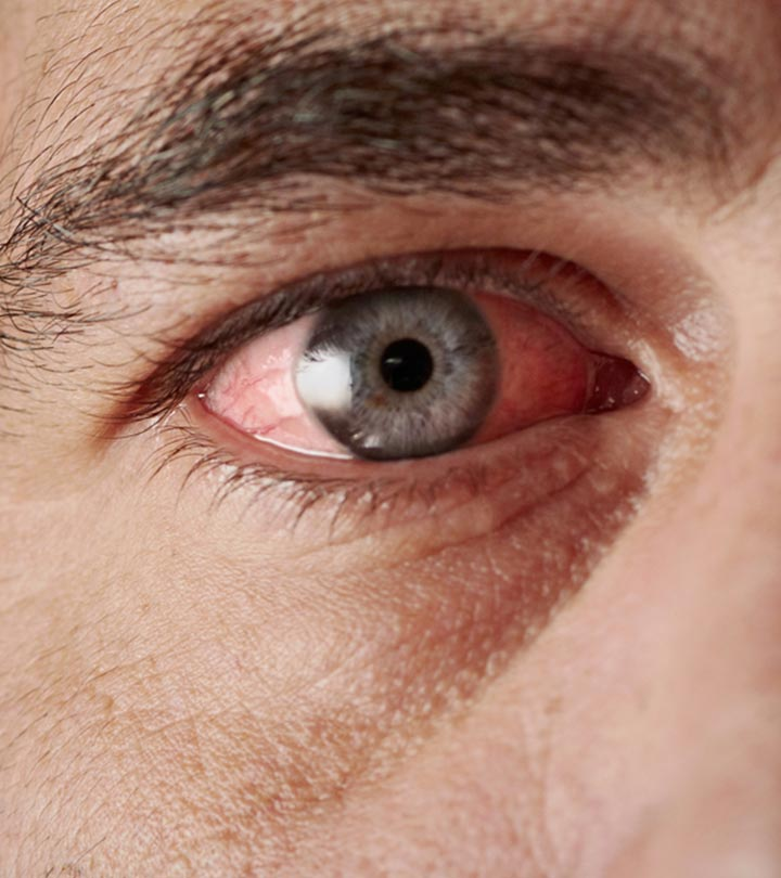 Top-10-Home-Remedies-To-Get-Relief-From-Pink-Eye