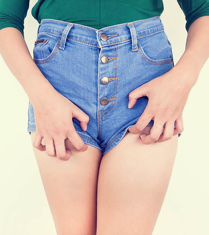 15 Effective Home Remedies To Get Rid Of Jock Itch