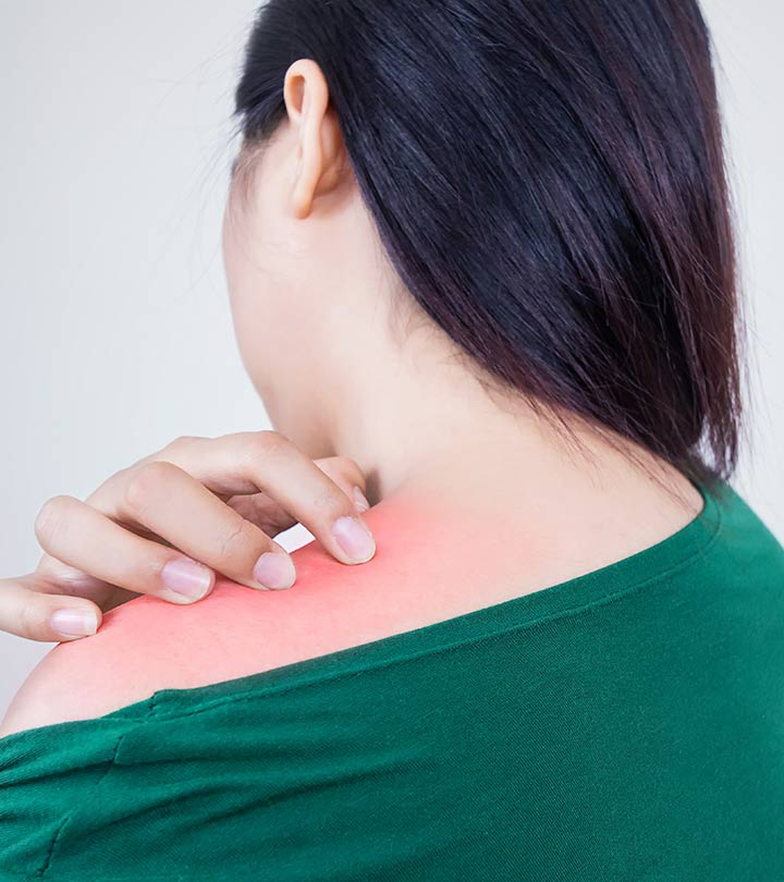 282-27 Effective Home Remedies For Prickly Heat-466648691