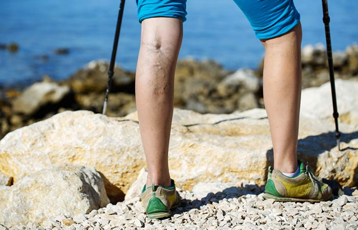 20. Reduces The Appearance Of Varicose Veins