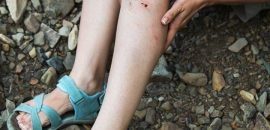 13 Effective Home Remedies To Cure Leg Ulcers Naturally