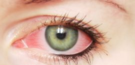 25-Effective-Home-Remedies-To-Treat-Eye-Infection