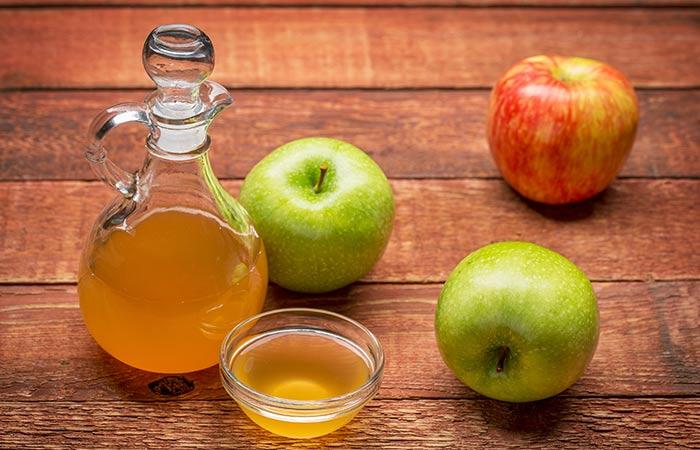 5. Apple Cider Vinegar And Baking Soda For Acne