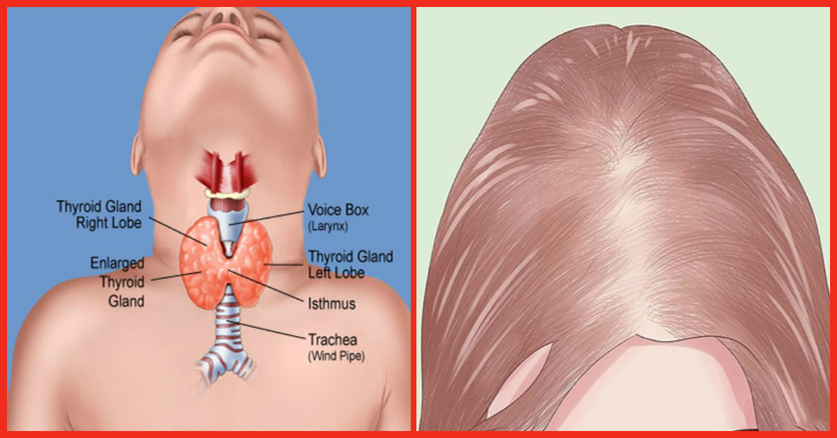 8 Simple Ways To Combat Thyroid Induced Hair Loss Naturally