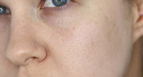 How To Make Pores Smaller With Makeup - Prep Your Skin
