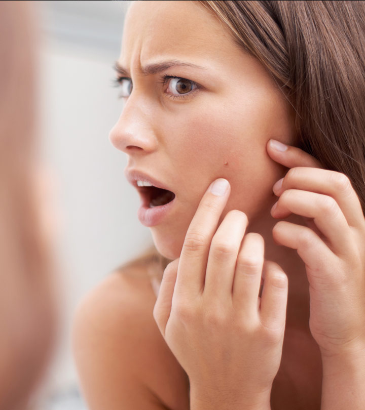 How To Use Camphor Oil For Treating Acne