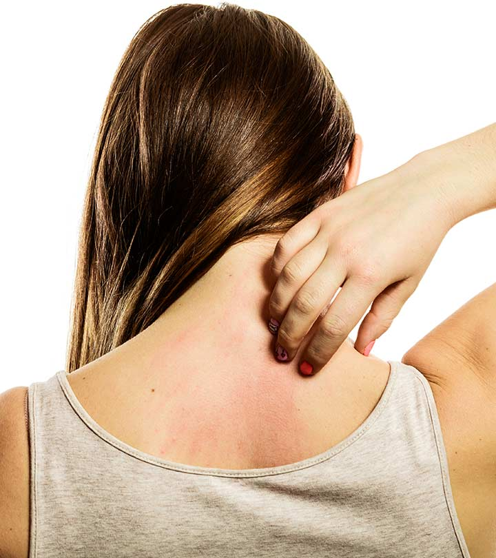 How To Get Rid Of Skin Rashes 21 Remedies Diet Tips
