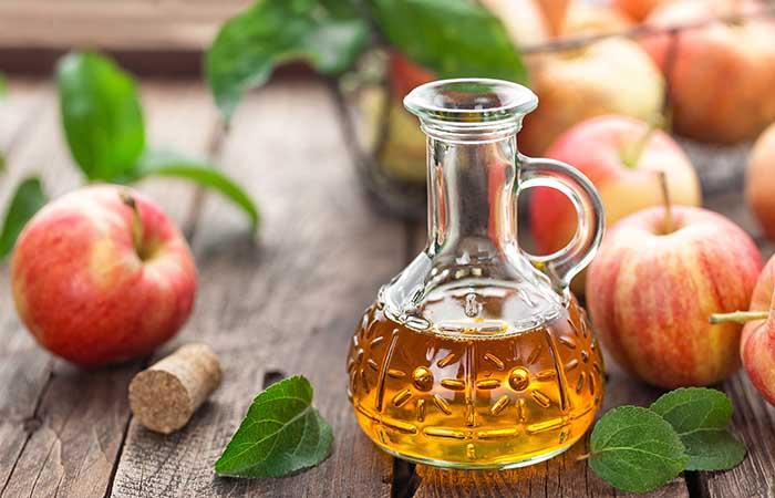 4. Apple Cider Vinegar And Lemon Juice For Dark Spots