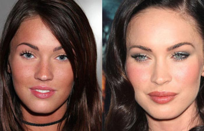 Hollywood Celebrity Megan Fox Before and After Plastic Suregery