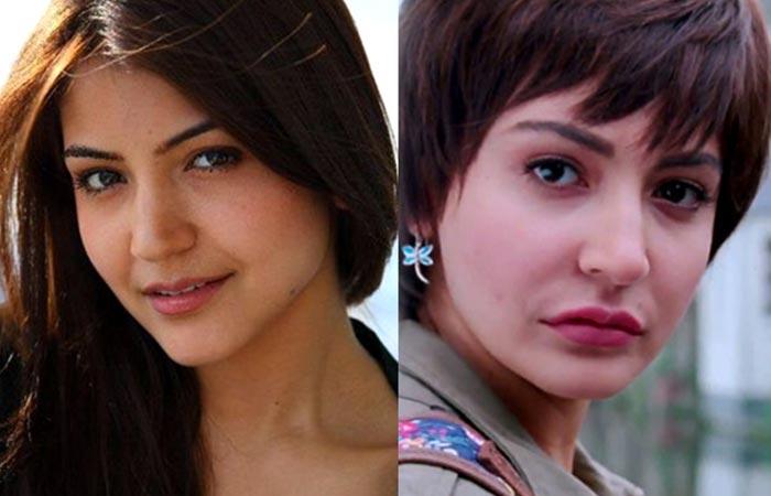 Bollywood Actress Anushka Sharma Before And After Plastic Surgery