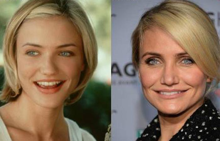 Hollywood Celebrity Cameron Diaz Before and After Plastic Suregery