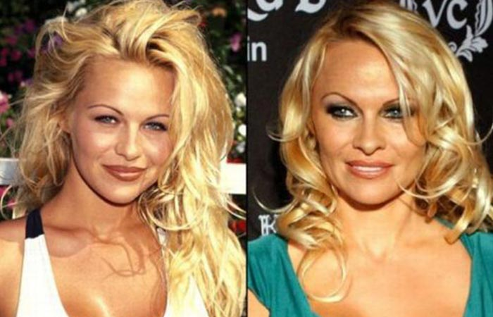 Hollywood Celebrity Pamela Anderson Before and After Plastic Suregery