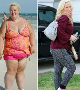 Mama June's 300 Lb Weight Loss – How She Dropped To Size 4 From Size 24